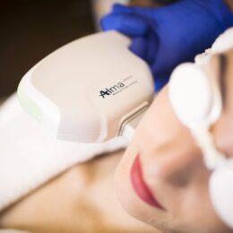 laser IPL, zamykanie naczynek, leczenie rumienia i trądziku, zmiany pigmentowe